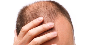Was hilft bei Haarausfall